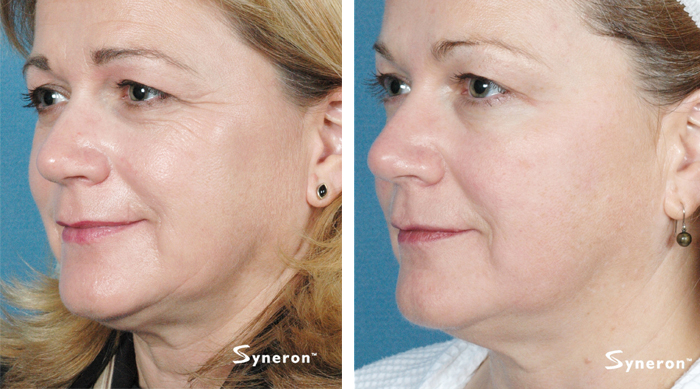 Laser Skin Tightening Ipl Skin Tightening Mystique