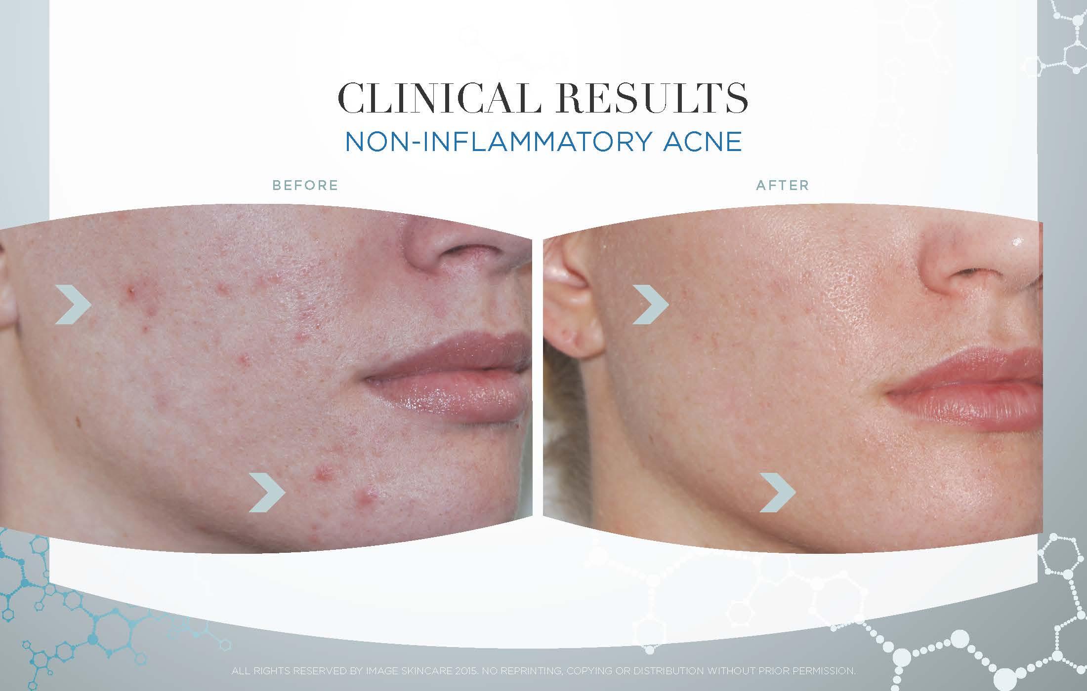 Image Skincare Fresno Mystique Medical Spa