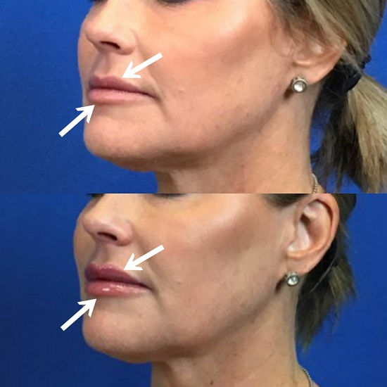 $100 Off Any Lip Filler Of Your Choice - Mystique Medical