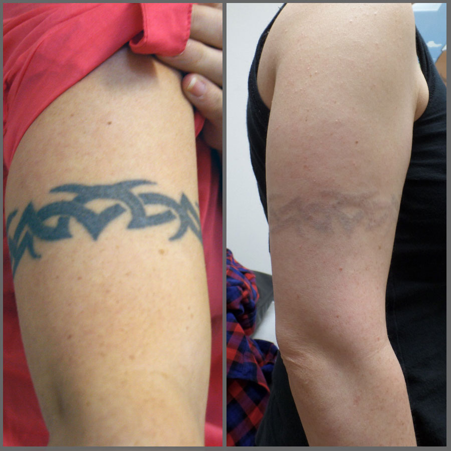 Laser Tattoo Removal - Mystique Medical Day Spa