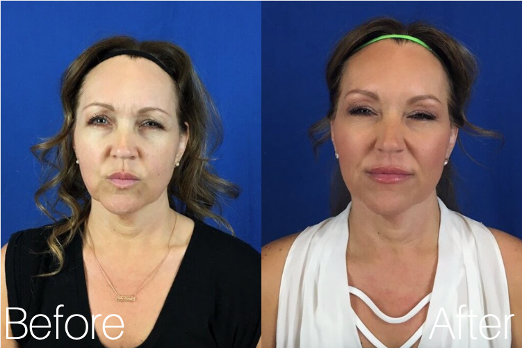 Botox Cosmetic | Botox Injections, Pricing | Mystique Medical Spa