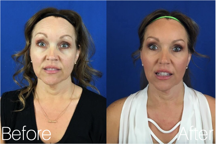 Botox Cosmetic | Botox Injections, Pricing | Mystique